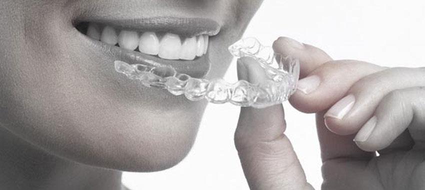 ortodonziainvisibilie